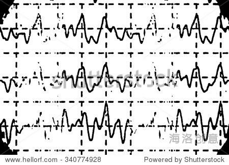 脑电波在脑电图癫痫脑电图,插图