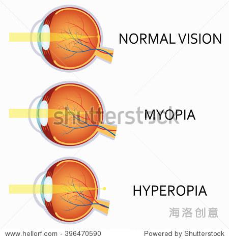 光学人眼的缺陷 近视和远视 人眼的解剖结构 医疗保健,科学 海洛