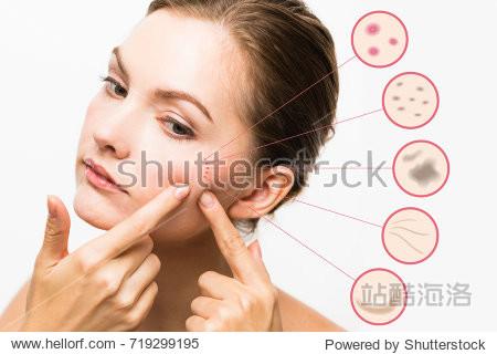 woman skin trouble. pimple  freckle  spot  wrinkle  saggy.