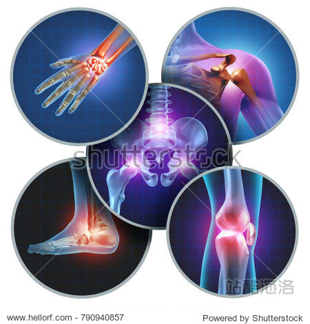 Human painful joints concept with the skeleton anatomy of the body with a group of sores with glowing joint pain and injury or arthritis with 3D illustration elements.